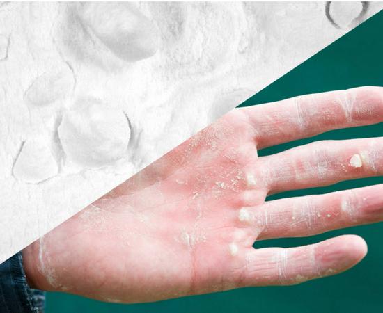 Best Hand Softener